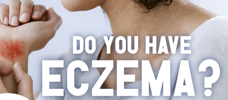 Clinical Trial for Eczema at Skin Care Research